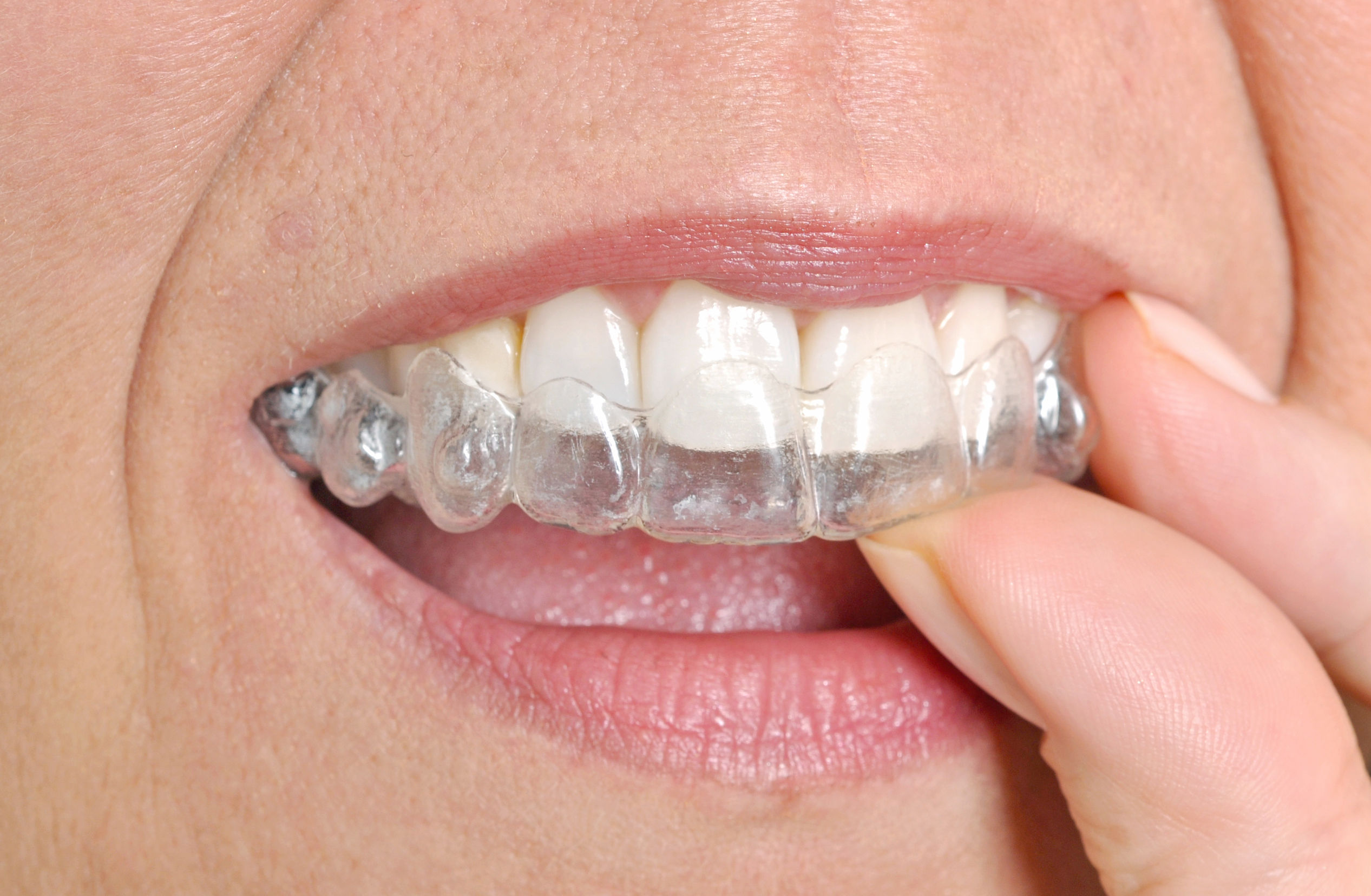 Wonderful Straight Wire Orthodontics Contemporary - Electrical ...