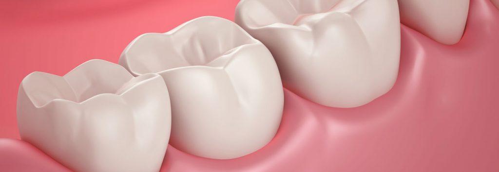 prevent receding gums